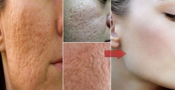 Κάντε θαύματα στο δέρμα σας με συστατικά από την κουζίνα σας!