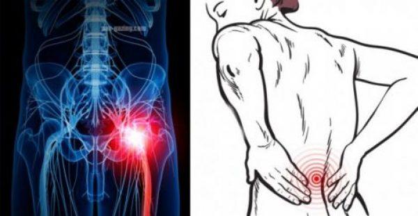 Έχετε Πόνους στη Μέση; Δείτε Τρεις Απλούς τρόπους για να απαλλαγείτε!