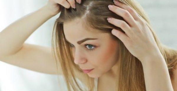 Αν Πέφτουν τα Μαλλιά σας Φτιάξτε ΑΥΤΗ τη Λοσιόν