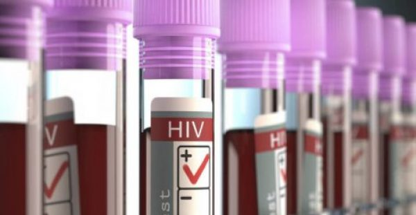 AIDS: Πρωτοφανή αποτελέσματα από νέα θεραπεία – Η περίπτωση 44χρονου Βρετανού