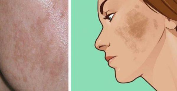 Έχετε πανάδες; 6 Φυσικούς Τρόπους για να Αντιμετωπίσετε τον Αποχρωματισμό του Δέρματος