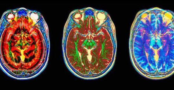 Ασθενείς από το εξωτερικό στην Ευρωκλινική Αθηνών για νευροχειρουργικές επεμβάσεις