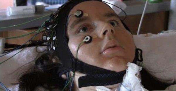 Γράφτηκε ιστορία: Ασθενείς με προχωρημένη Σκλήρυνση «μίλησαν» εγκεφαλικά μέσω υπολογιστή [vid]