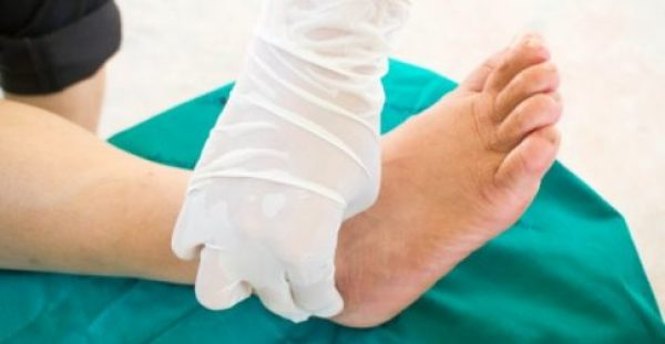 Διαβητικό πόδι: 2.000 – 3.000 ακρωτηριασμοί κάτω άκρων σε ετήσια βάση στην Ελλάδα