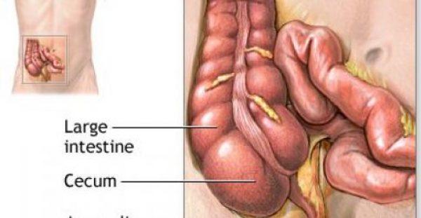 Σκωληκοειδίτιδα: Συμπτώματα, διάγνωση και αντιμετώπιση. Βίντεο