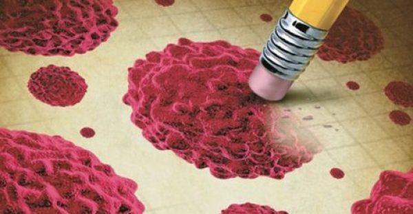 Ποιος καρκίνος είναι 90% ιάσιμος με έγκαιρη διάγνωση