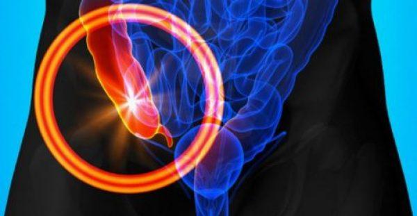Σκωληκοειδίτιδα: Συμπτώματα, διάγνωση και αντιμετώπιση -ΕΙΚΟΝΕΣ , ΒΙΝΤΕΟ