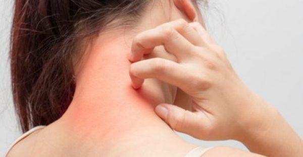 Δερματίτιδα εξ επαφής: Συμπτώματα, αιτίες, αντιμετώπιση – Ποιοι επαγγελματίες είναι πιο επιρρεπείς [vid]