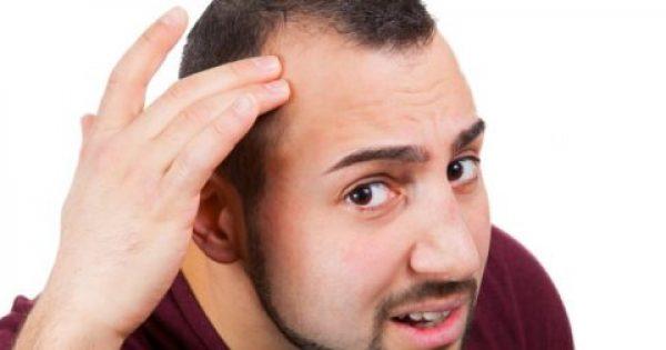 Γι' αυτό κάποιοι κάνουν πιο γρήγορα φαλάκρα – Τι βρήκαν οι επιστήμονες