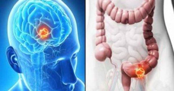 «Σκοτώστε» τα καρκινικά κύτταρα βγάζοντας απλώς ΑΥΤΟ από τη διατροφή σας!!!
