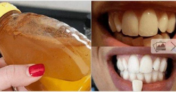 ΕΚΠΛΗΚΤΙΚΗ ΛΕΥΚΑΝΣΗ Δοντιών ΜΕ ΕΝΑ ΜΟΝΟ Συστατικό που ΕΧΟΥΜΕ ΟΛΟΙ στο Ντουλάπι μας!