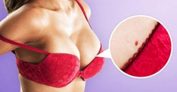 Τι σημαίνουν αυτά τα κόκκινα σημάδια όταν εμφανίζονται στο σώμα μας;