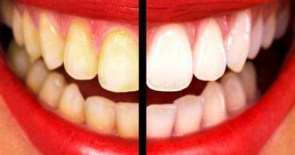 Δείτε ΠΩΣ θα Αποκτήσετε το ΠΙΟ λαμπερό Χαμόγελο! – 9 Θαυματουργές Συνταγές για Κάτασπρα Δόντια!