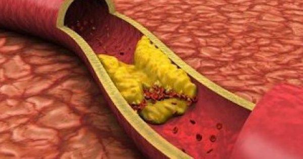 Καρδιοχειρουργός μιλάει για την απάτη της χοληστερίνης!!!
