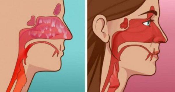 ΕΚΠΛΗΚΤΙΚΟ: Ξεβουλώστε την Μύτη σας μέσα σε 20 δευτερόλεπτα με ΑΥΤΗΝ την Μυστική Συνταγή!