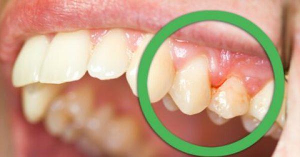 Φυσικές θεραπείες για ούλα που ματώνουν και δόντια που κουνιούνται!!!