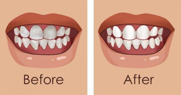 8 υπέροχες υπερ-τροφές που ενδυναμώνουν τα δόντια και παρεμποδίζουν τη διάβρωση του σμάλτου
