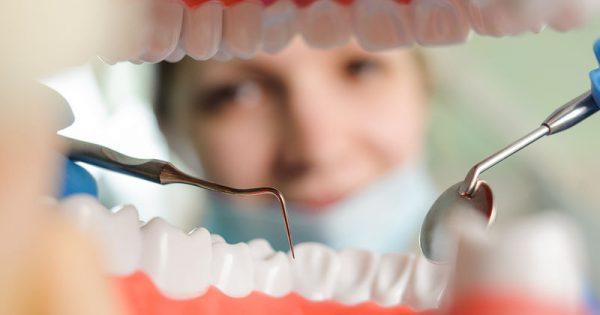 Παγκόσμια Ημέρα Στοματικής Υγείας: Οι 10 συμβουλές-κλειδιά του οδοντίατρου