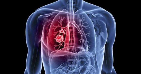 Μικροκυτταρικός καρκίνος του πνεύμονα: Τα συμπτώματα του πολύ επιθετικού καρκίνου