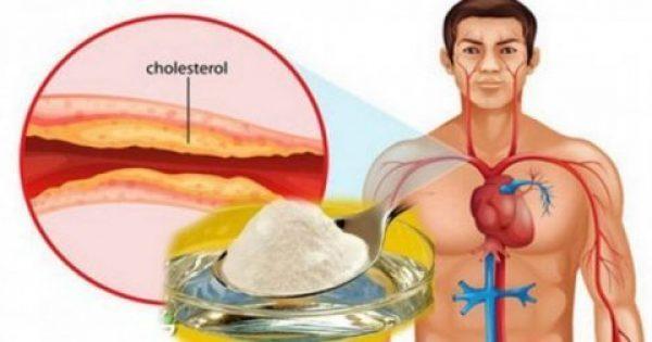 Αυτή η σπιτική συνταγή είναι το καλύτερο φάρμακο κατά της χοληστερίνης και της υψηλής αρτηριακής πίεσης