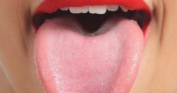 Εσείς βουρτσίζετε τη γλώσσα σας; 5 επιπτώσεις αν δεν το κάνετε