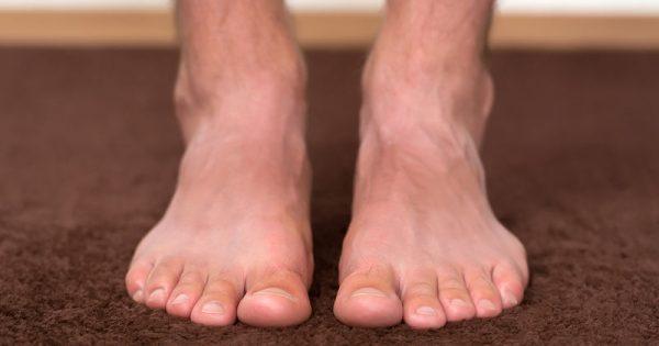 Μυκητιάσεις ποδιών: Βασικοί κανόνες για να τις προλάβετε