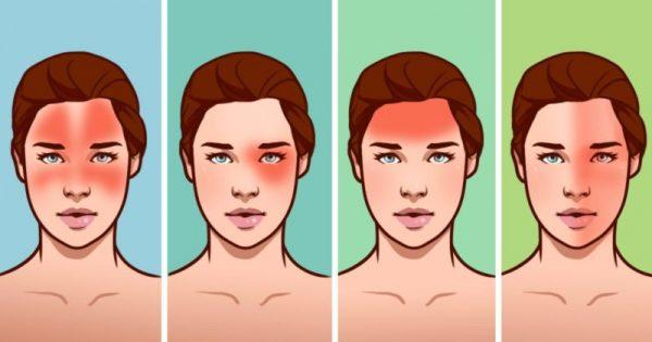 10 κοινές αιτίες του Πονοκέφαλου που προκαλούν Έκπληξη