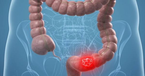 Καρκίνος παχέος εντέρου: Πότε πρέπει να ξεκινά νωρίτερα ο έλεγχος