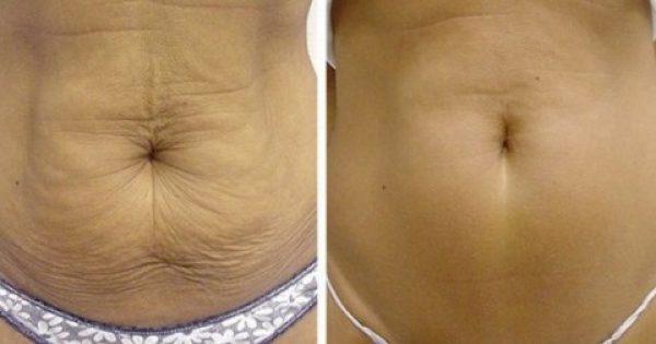 Πως να συσφίξετε το δέρμα σας με φυσικό τρόπο