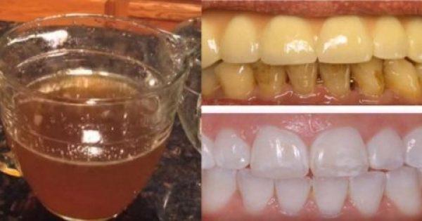 Με ΑΥΤΗ τη Θαυματουργή Φυσική Συνταγή θα αποκτήσετε Κάτασπρα Δόντια σε Χρόνο Ρεκόρ!!!-ΒΙΝΤΕΟ