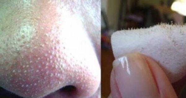 Πως να αφαιρέσετε τα μαύρα στίγματα από τη μύτη σας, με 2 μόλις υλικά!