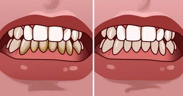 Πώς να αφαιρέσετε την πλάκα από τα δόντια σε λιγότερο από 5 λεπτά