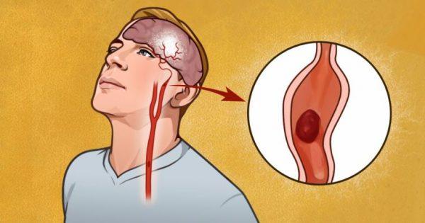 7 έγκαιρες Προειδοποιητικές Ενδείξεις του Εγκεφαλικού που όλοι ΠΡΕΠΕΙ να γνωρίζουν