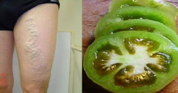 Πώς να θεραπεύσετε τη φλεβίτιδα με τη βοήθεια της ντομάτας