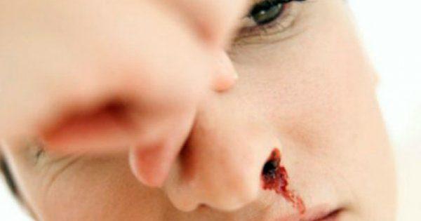Αιμορραγείς; Αυτό το μπαχαρικό θα σταματήσει το αίμα σε δευτερόλεπτα!