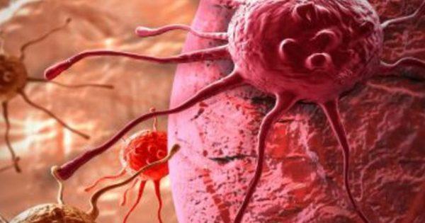 Νέα μονοθεραπεία για τον καρκίνο κεφαλής και τραχήλου