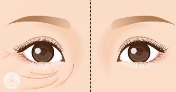 Εξαφανίστε τις Ρυτίδες από το Πρόσωπό σας και Δείξτε μέχρι 5 Χρόνια Νεότερη, με ΑΥΤΗΝ την Σπιτική Κρέμα Ματιών!