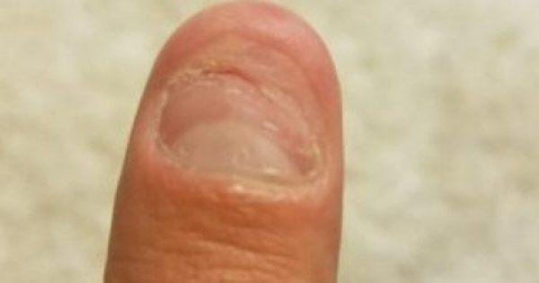 Σύμφωνα με τους επιστήμονες, ΟΛΟΙ οι άνθρωποι που τρώνε τα νύχια τους είναι… Δεν φαντάζεστε τι ανακάλυψαν!