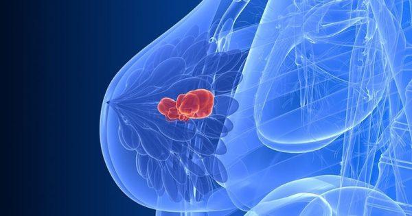 Καρκίνος μαστού & αϋπνίες: Η άσκηση που μετριάζει τα συμπτώματα