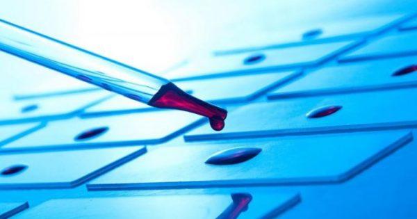 Καρκίνος: Σοβαρός παράγοντας κινδύνου η θρομβοκυττάρωση – Τι έδειξε μεγάλη έρευνα