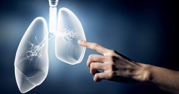 Καρκίνος του πνεύμονα: Την πιο επικίνδυνη επιπλοκή δεν την ξέρατε μέχρι τώρα…