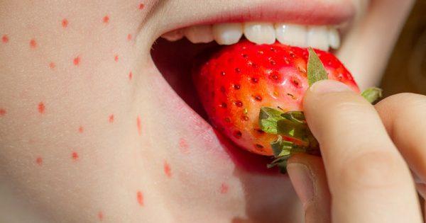 Ποια είναι η πιο συχνή διατροφική αλλεργία