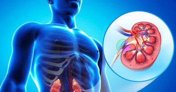 Πέτρες στα νεφρά: Όλα τα συμπτώματα – Πώς θα φύγουν ανώδυνα -ΒΙΝΤΕΟ