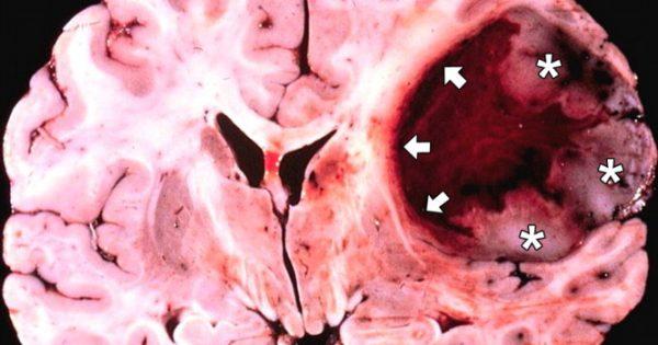 Καλά νέα για το γλοίωμα εγκεφάλου με νέα συνδυαστική θεραπεία