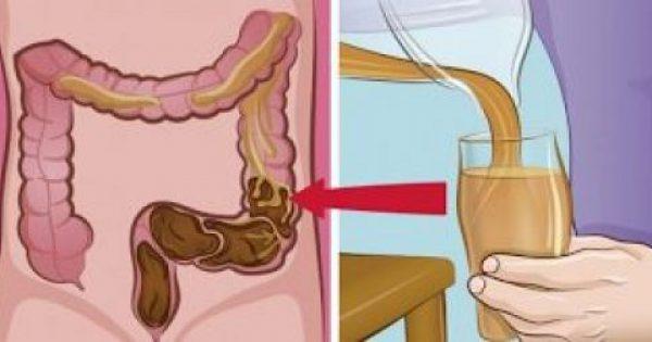 """Η λάθος διατροφή οφείλεται για την συσσώρευση 9 κιλών αποβλήτων στο σώμα. Δείτε ΠΩΣ να """"ξαλαφρώσετε"""" το έντερο σας!"""