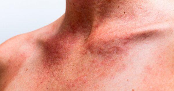 Παθαίνετε συχνά ηλιακό έγκαυμα; Μπορεί να είναι δηλητηρίαση από τον ήλιο – Συμπτώματα και αντιμετώπιση