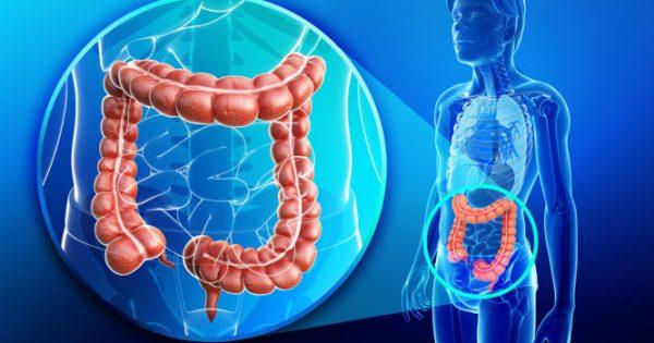 Πολύποδες παχέος εντέρου: Ποιοι κινδυνεύουν – Ποιες τροφές μειώνουν τον κίνδυνο