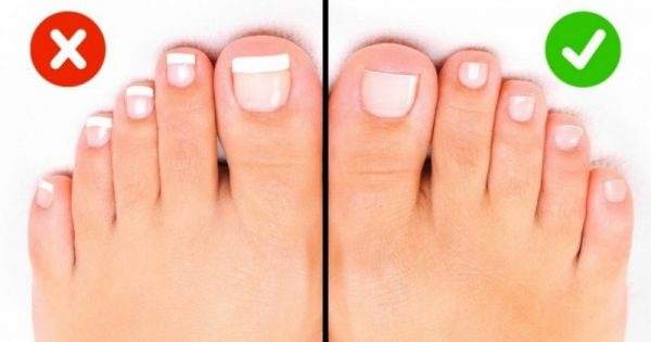 10+1 αποτελεσματικά tips για να απαλλαγείτε μια για πάντα από τη δυσάρεστη κακοσμία των ποδιών!!!-ΦΩΤΟ