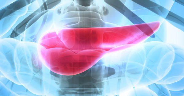 Κουίζ: Πόσα γνωρίζετε για τον καρκίνο του παγκρέατος;