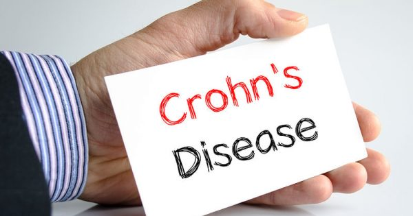 Νόσος του Crohn: Η διατροφή που μετριάζει τη φλεγμονή